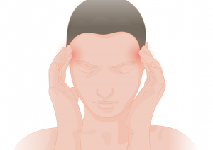 remedies for migraine