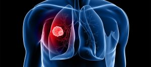 Lung cancer prevention